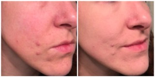 Before and after of me wearing the anti-redness cream